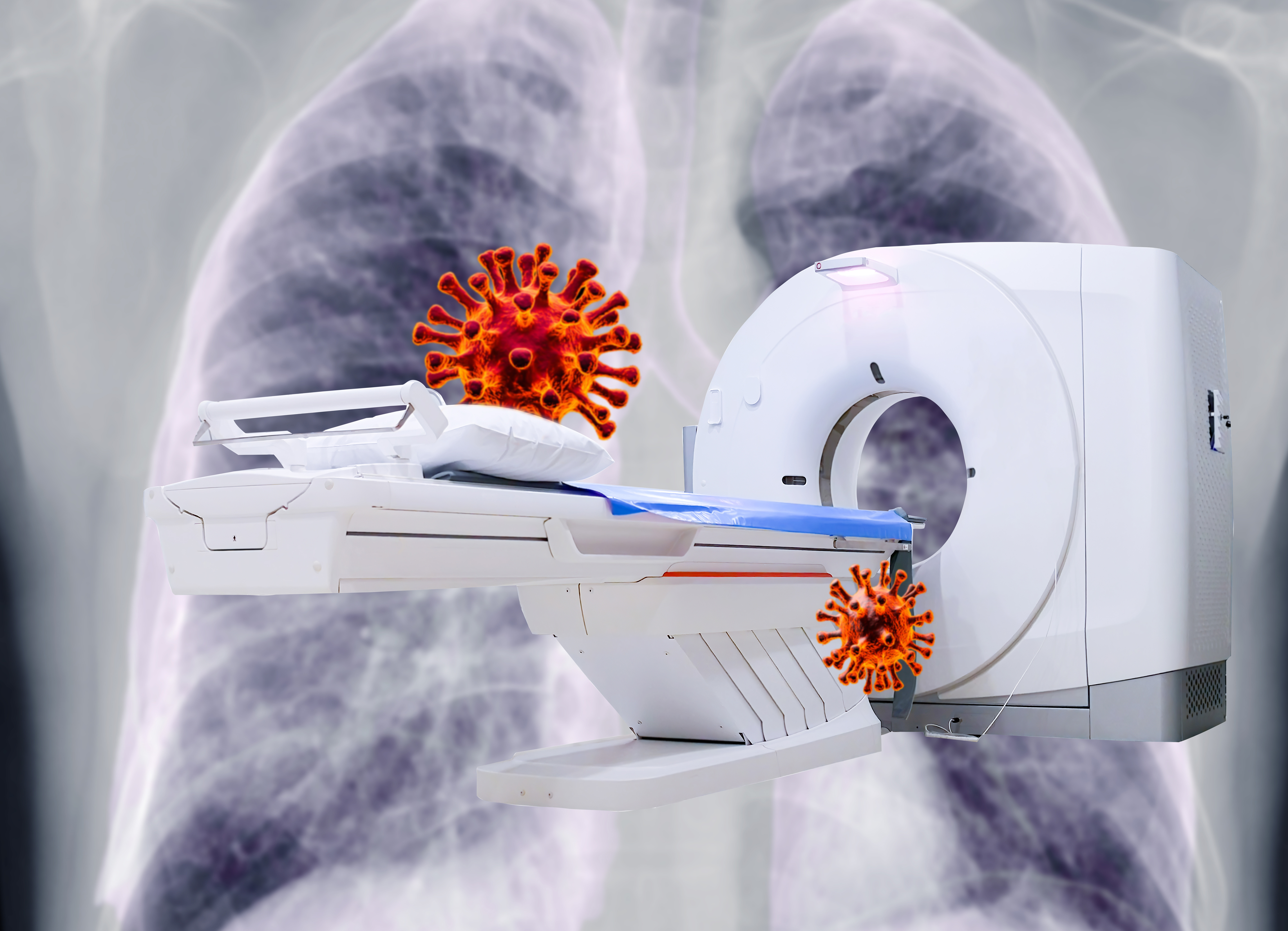 Ct-scan/Covid-19